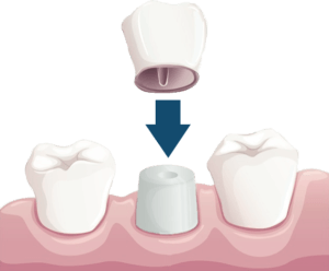 Single Dental Crown